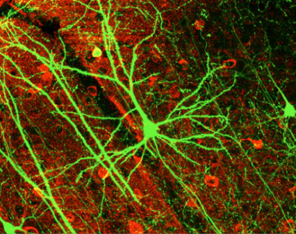 (Pyrimidal Neuron stained with Green Fluorescing Protein. Image Credit: Wikicommons)