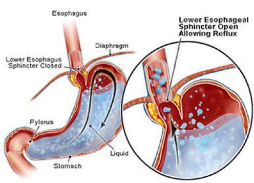 acid reflux steptohealth dot com