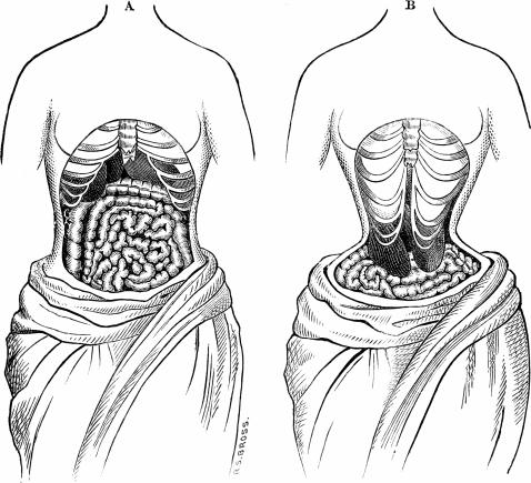 corset training physiological impact