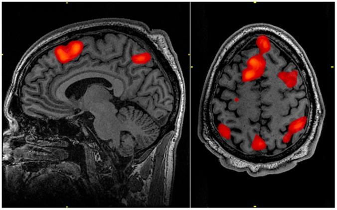 FMRI_scan_during_working_memory_tasks